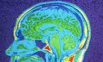 An MRI scan of brain.