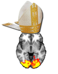 bishop_brain[1]